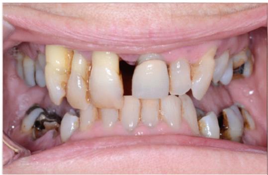 Fixed hybrid implants denture – Doctor Darius Smith